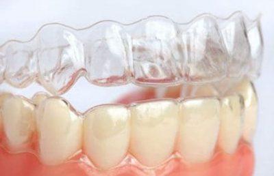 Aparelho dental Invisalign no Rio de Janeiro