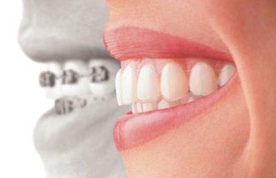 Aparelho dentário invisalign no Rio de Janeiro