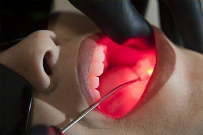 Laserterapia odontológica no Rio de Janeiro