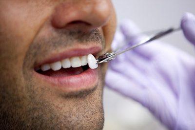 Lente dental no Rio de Janeiro